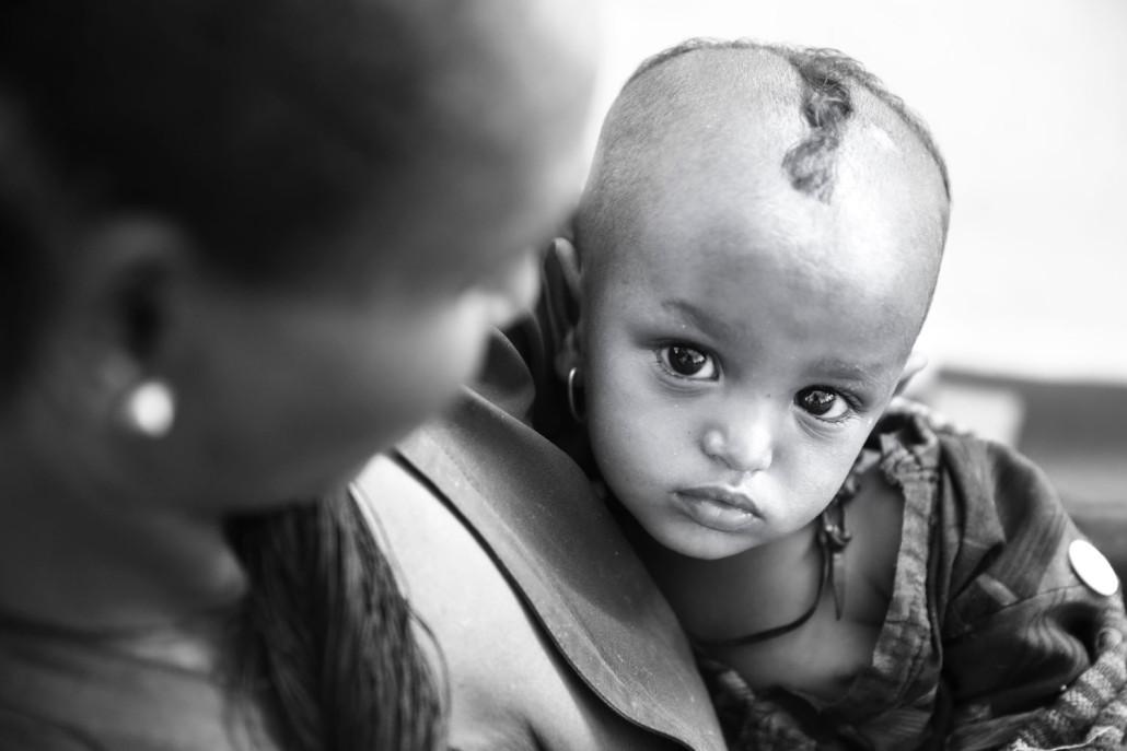 Save the Children: Emergenza siccità in Etiopia.